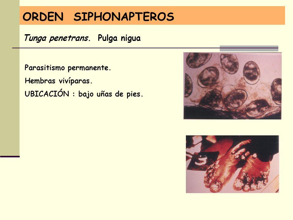 ORDEN SIPHONAPTEROS Tunga penetrans. Pulga nigua Parasitismo permanente. Hembras vivíparas. UBICACIÓN : bajo uñas de pies.