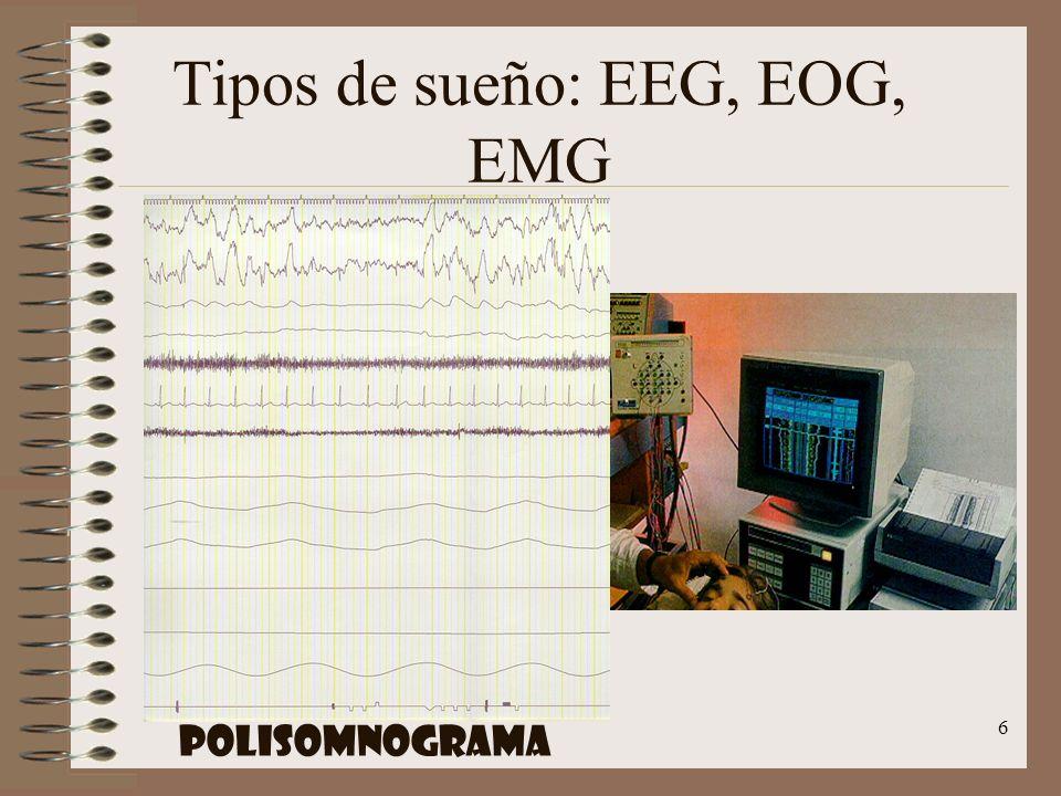 6 Tipos de sueño: EEG, EOG, EMG POLISOMNOGRAMA