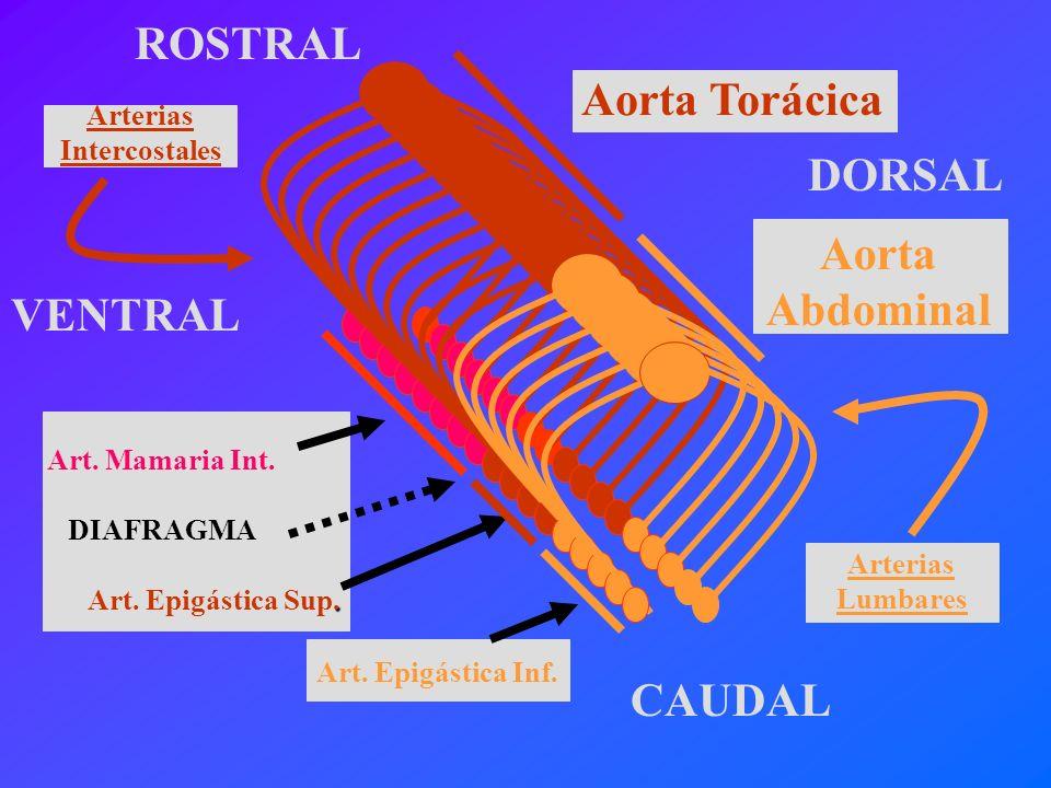 Arteria Epigástrica Superior Arteria Epigástrica Inferior Arteria Subclavia Arteria Iliaca Externa