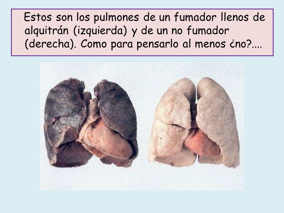 Algunos de los efectos del tabaco son: Disminución del movimiento de los cilios de la mucosa de la tráquea y de los bronquios.