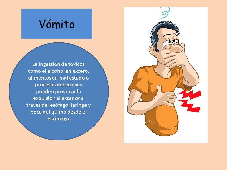 Vómito La ingestión de tóxicos como el alcohol en exceso, alimentos en mal estado o procesos infecciosos pueden provocar la expulsión al exterior a tr
