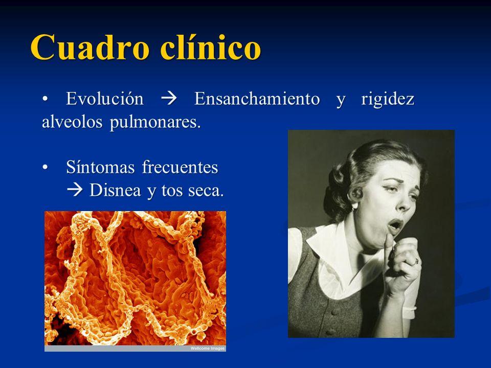 Cuadro clínico Evolución Ensanchamiento y rigidez alveolos pulmonares.Evolución Ensanchamiento y rigidez alveolos pulmonares. Síntomas frecuentesSínto