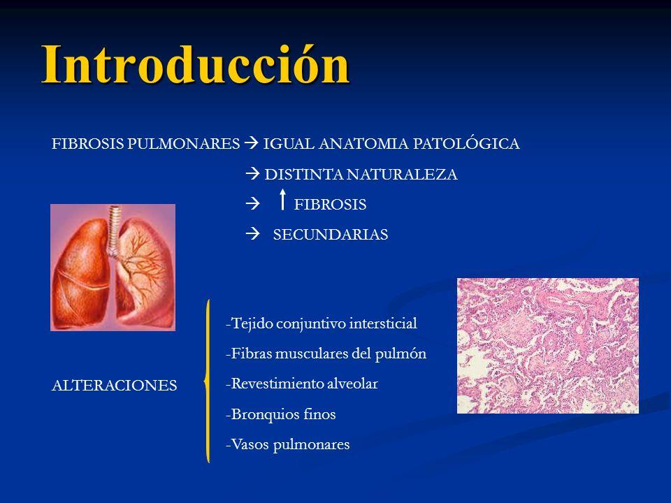 Introducción FIBROSIS PULMONARES IGUAL ANATOMIA PATOLÓGICA DISTINTA NATURALEZA FIBROSIS SECUNDARIAS ALTERACIONES -Tejido conjuntivo intersticial -Fibr
