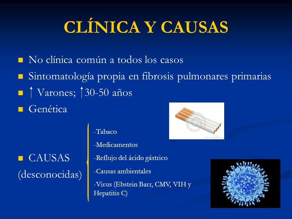 CLÍNICA Y CAUSAS No clínica común a todos los casos Sintomatología propia en fibrosis pulmonares primarias Varones; 30-50 años Genética CAUSAS (descon