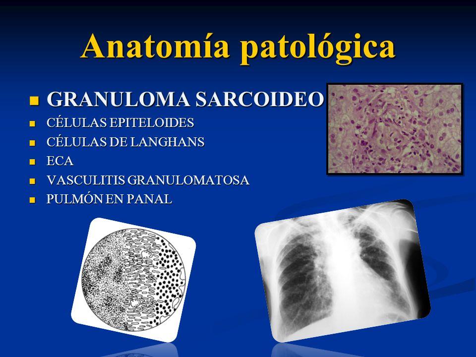 Anatomía patológica GRANULOMA SARCOIDEO GRANULOMA SARCOIDEO CÉLULAS EPITELOIDES CÉLULAS EPITELOIDES CÉLULAS DE LANGHANS CÉLULAS DE LANGHANS ECA ECA VA