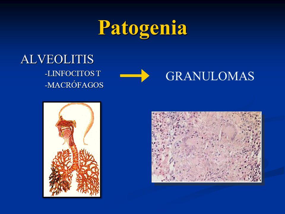 Patogenia ALVEOLITIS ALVEOLITIS -LINFOCITOS T -LINFOCITOS T -MACRÓFAGOS -MACRÓFAGOS GRANULOMAS