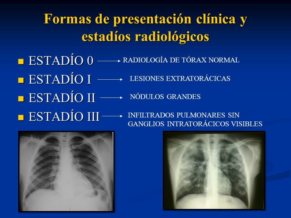 Formas de presentación clínica y estadíos radiológicos ESTADÍO 0 ESTADÍO 0 ESTADÍO I ESTADÍO I ESTADÍO II ESTADÍO II ESTADÍO III ESTADÍO III RADIOLOGÍ