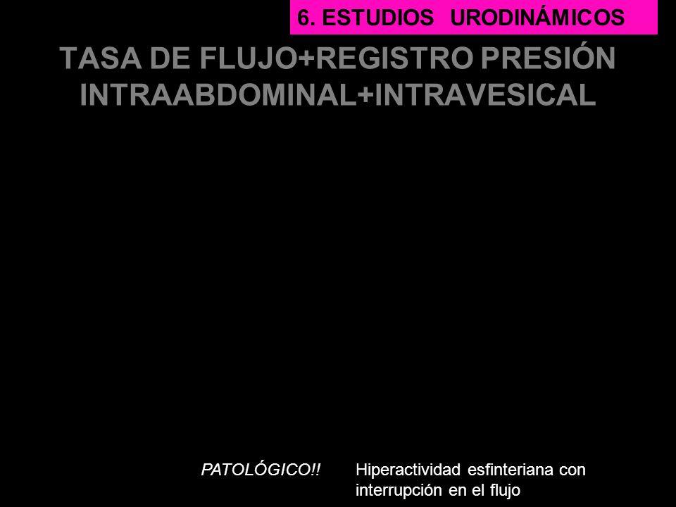 TASA DE FLUJO+REGISTRO PRESIÓN INTRAABDOMINAL+INTRAVESICAL PATOLÓGICO!! 6. ESTUDIOS URODINÁMICOS Hiperactividad esfinteriana con interrupción en el fl