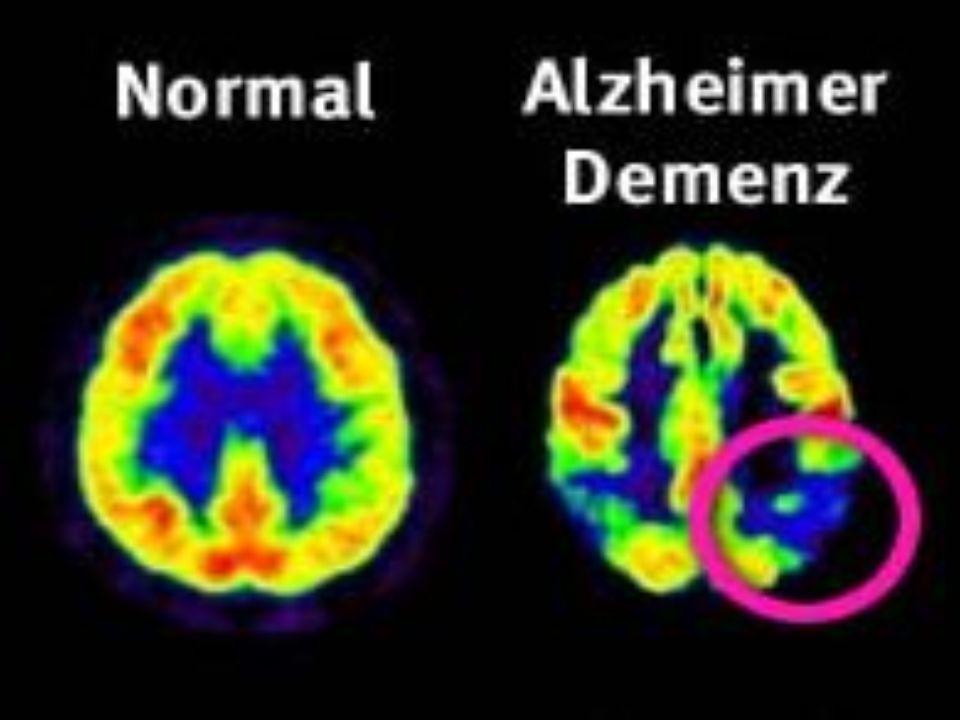 Demencia senil Es una enfermedad caracterizada por la pérdida de capacidad de la mente para llevar una vida normal.