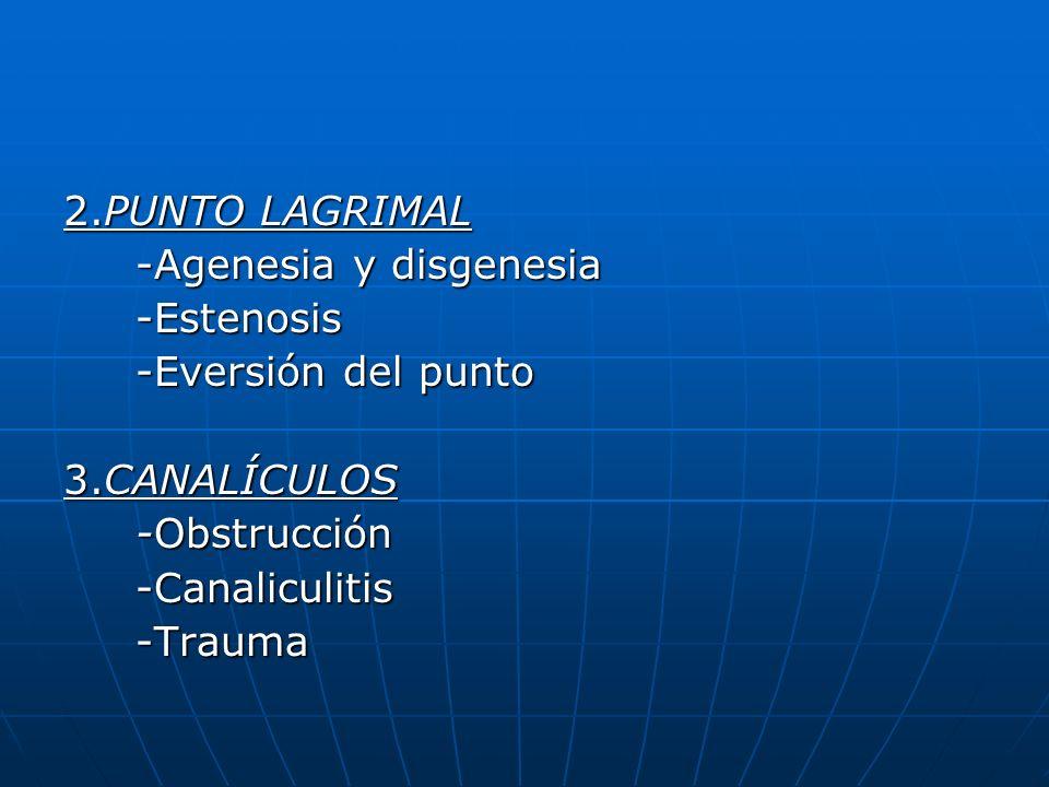 2.PUNTO LAGRIMAL -Agenesia y disgenesia -Agenesia y disgenesia -Estenosis -Estenosis -Eversión del punto -Eversión del punto 3.CANALÍCULOS -Obstrucció