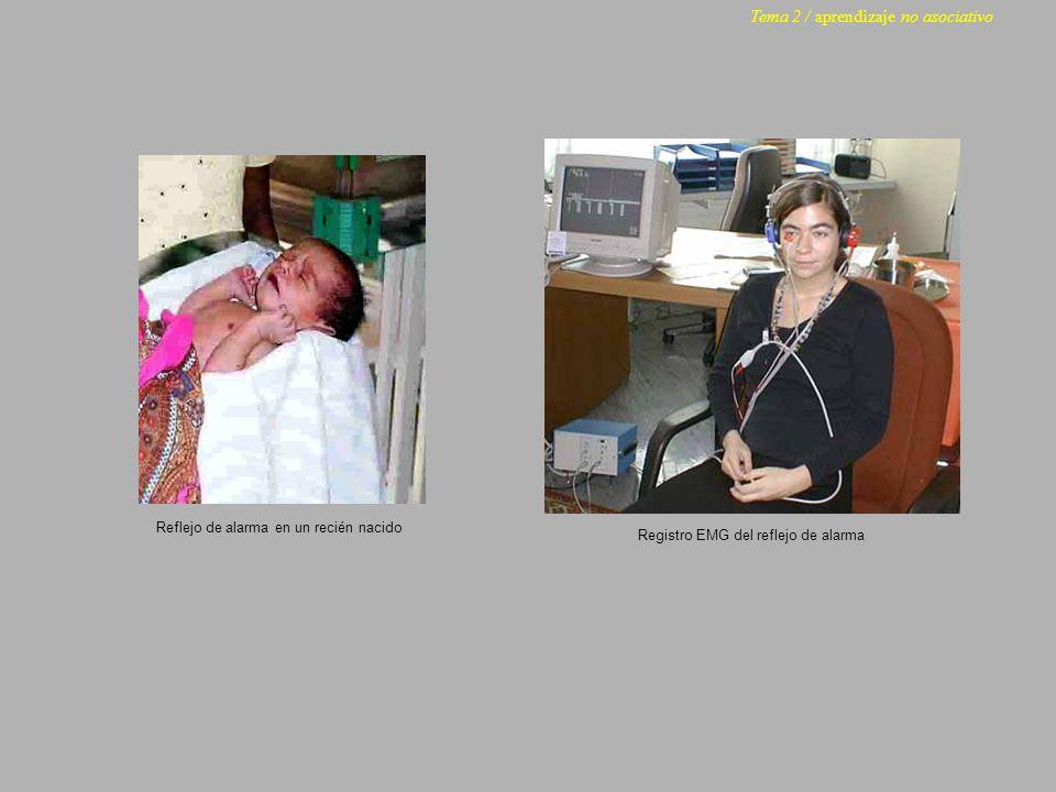 Reflejo de alarma en un recién nacido Registro EMG del reflejo de alarma