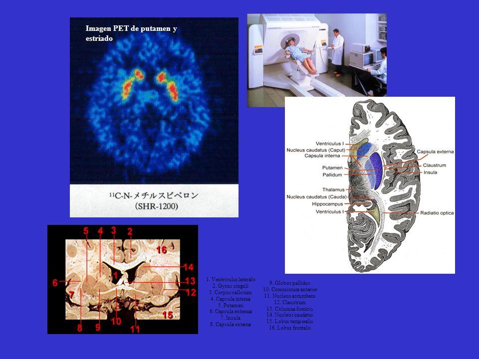 Imagen PET de putamen y estriado 1. Ventriculus lateralis 2. Gyrus cinguli 3. Corpus callosum 4. Capsula interna 5. Putamen 6. Capsula extrema 7. Insu