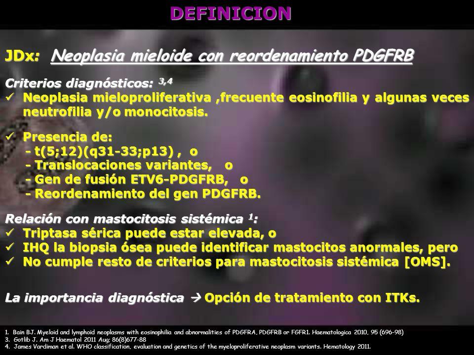 DEFINICION JDx: Neoplasia mieloide con reordenamiento PDGFRB Criterios diagnósticos: 3,4 Neoplasia mieloproliferativa,frecuente eosinofilia y algunas