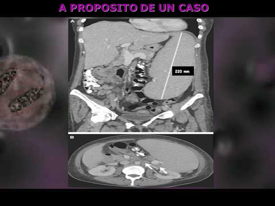 A PROPOSITO DE UN CASO Varón joven, eosinofilia (> 1500 x10 3 /μl ) - Síntomas Digestivos y ¿Alérgicos .