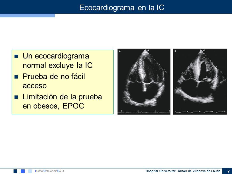 Hospital Universitari Arnau de Vilanova de Lleida 7 Ecocardiograma en la IC Un ecocardiograma normal excluye la IC Prueba de no fácil acceso Limitació