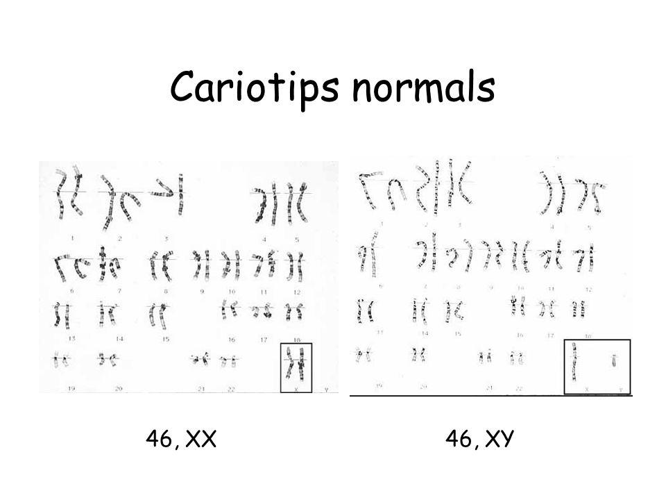 Cariotips normals 46, XX46, XY