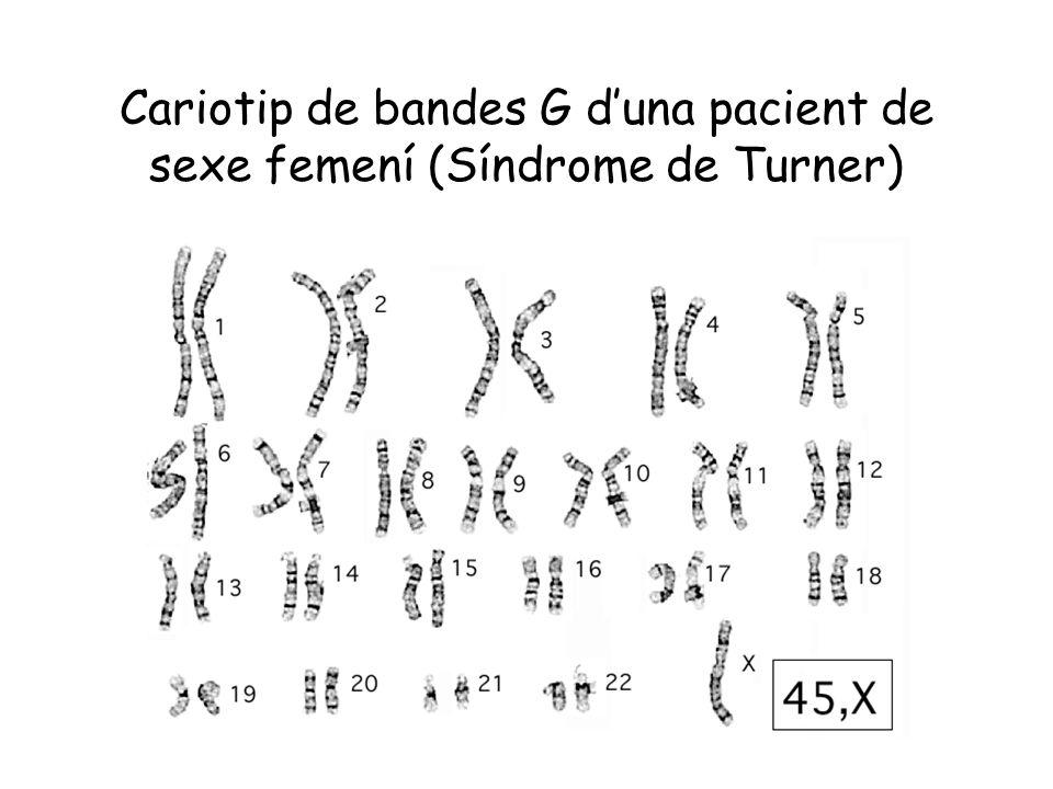 Cariotip de bandes G duna pacient de sexe femení (Síndrome de Turner)