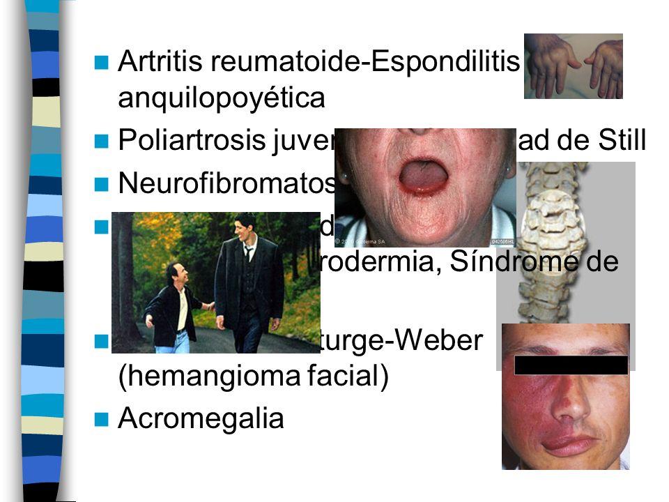 Artritis reumatoide-Espondilitis anquilopoyética Poliartrosis juvenil o enfermedad de Still Neurofibromatosis Enfermedades del colágeno:esclerodermia, Síndrome de CREST Síndrome de Sturge-Weber (hemangioma facial) Acromegalia