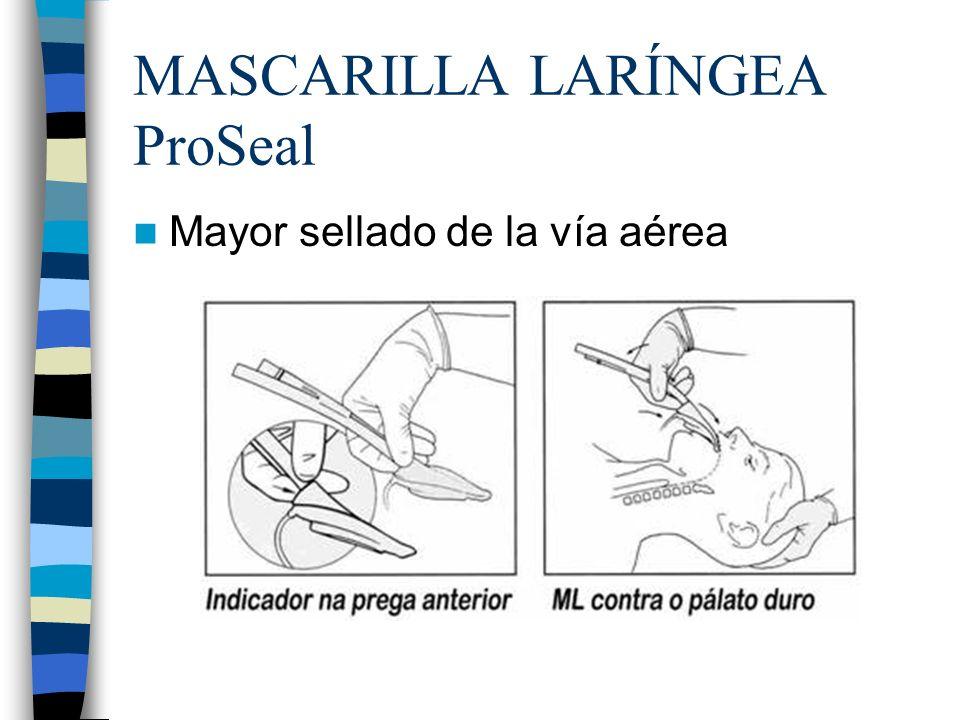 MASCARILLA LARÍNGEA ProSeal Mayor sellado de la vía aérea