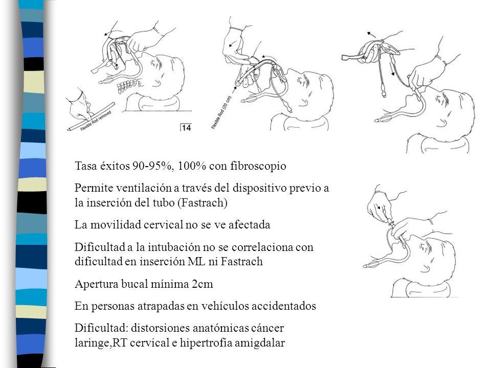 Tasa éxitos 90-95%, 100% con fibroscopio Permite ventilación a través del dispositivo previo a la inserción del tubo (Fastrach) La movilidad cervical no se ve afectada Dificultad a la intubación no se correlaciona con dificultad en inserción ML ni Fastrach Apertura bucal mínima 2cm En personas atrapadas en vehículos accidentados Dificultad: distorsiones anatómicas cáncer laringe,RT cervical e hipertrofia amigdalar