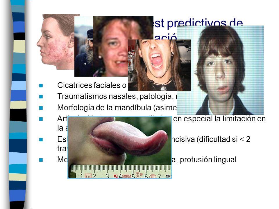 2.Signos clínicos/test predictivos de dificultad de intubación: 2.1.