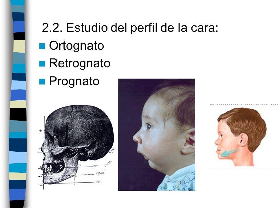 2.2. Estudio del perfil de la cara: Ortognato Retrognato Prognato