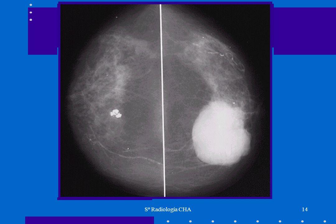 Sº Radiología CHA14