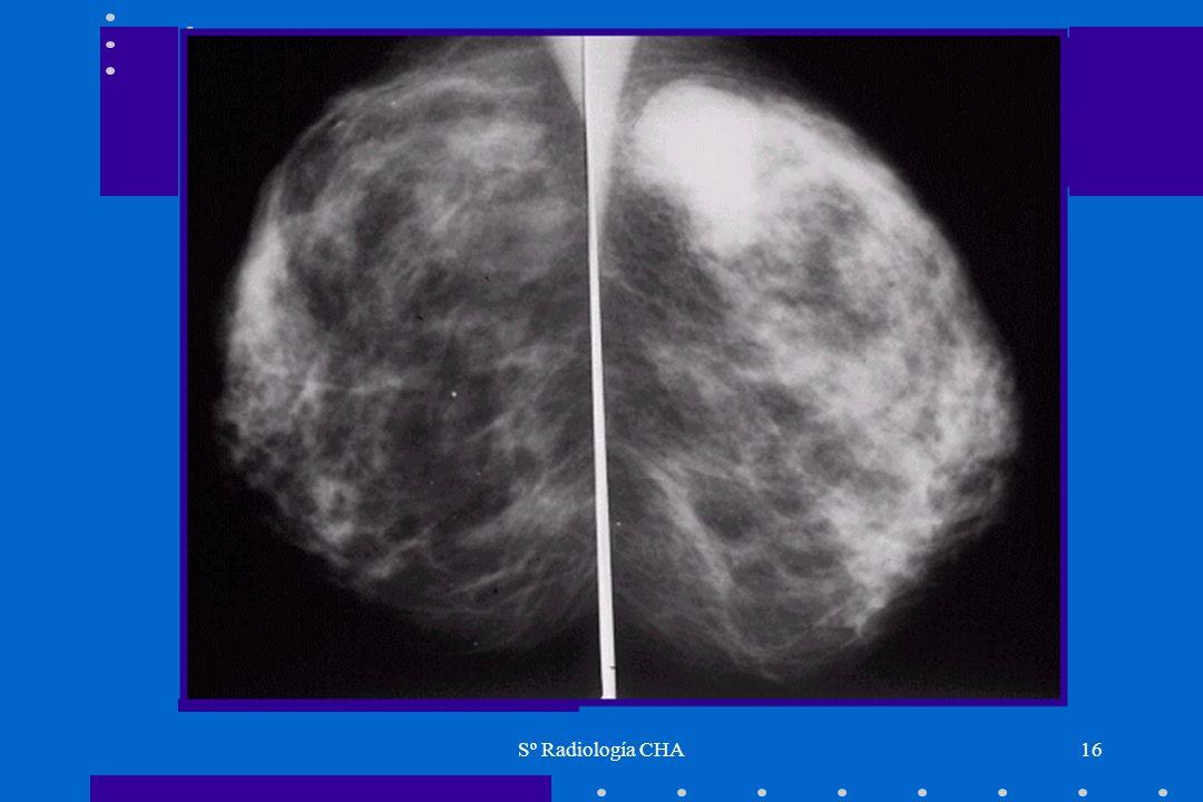 Sº Radiología CHA16