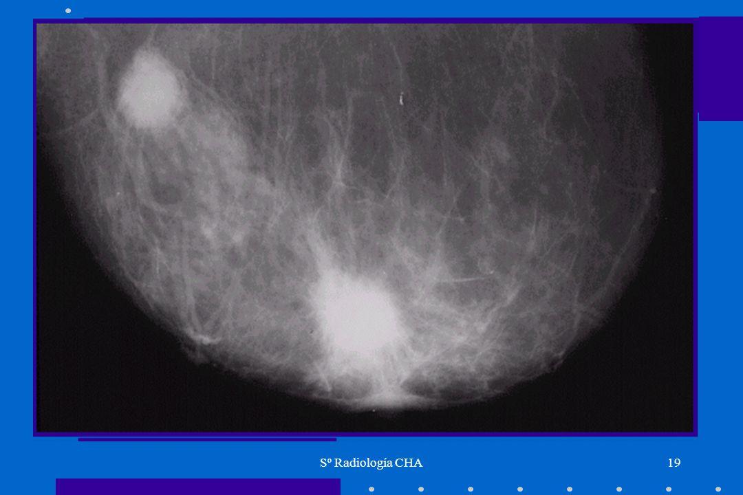 Sº Radiología CHA19