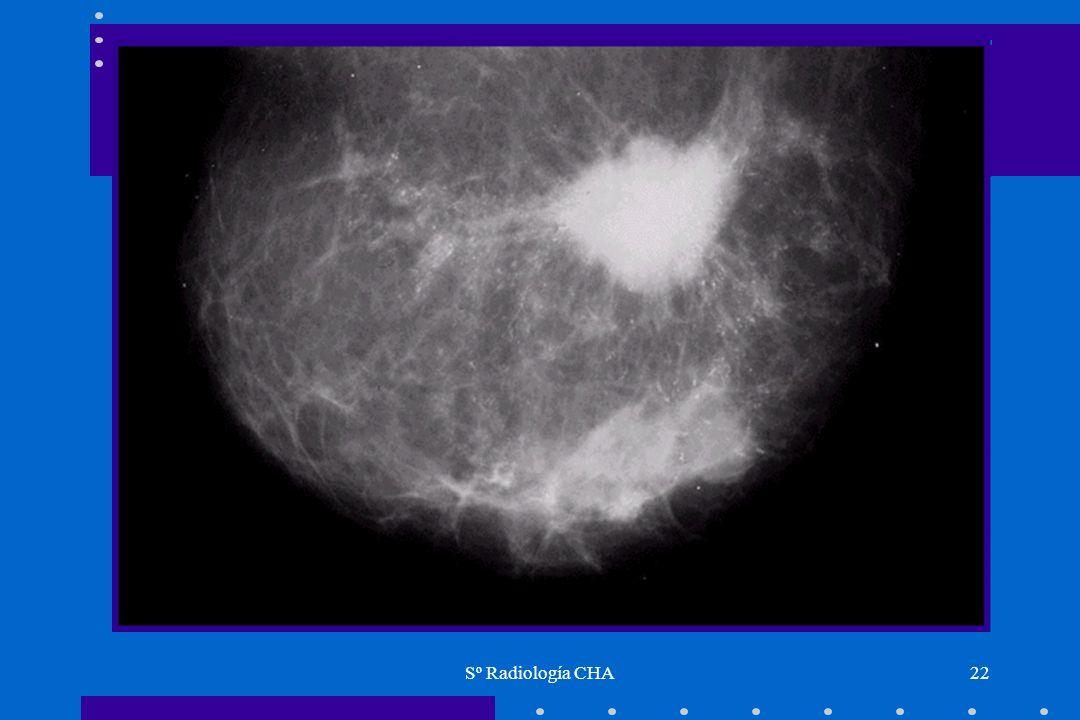 Sº Radiología CHA22