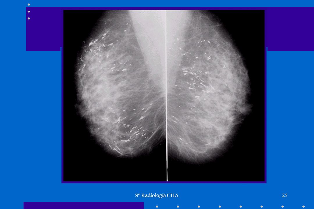 Sº Radiología CHA25