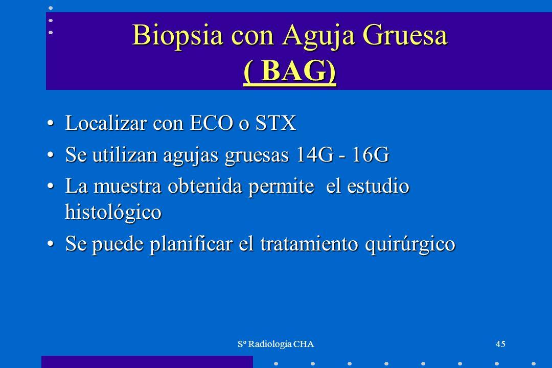 Sº Radiología CHA45 Biopsia con Aguja Gruesa ( BAG) Localizar con ECO o STXLocalizar con ECO o STX Se utilizan agujas gruesas 14G - 16GSe utilizan agu