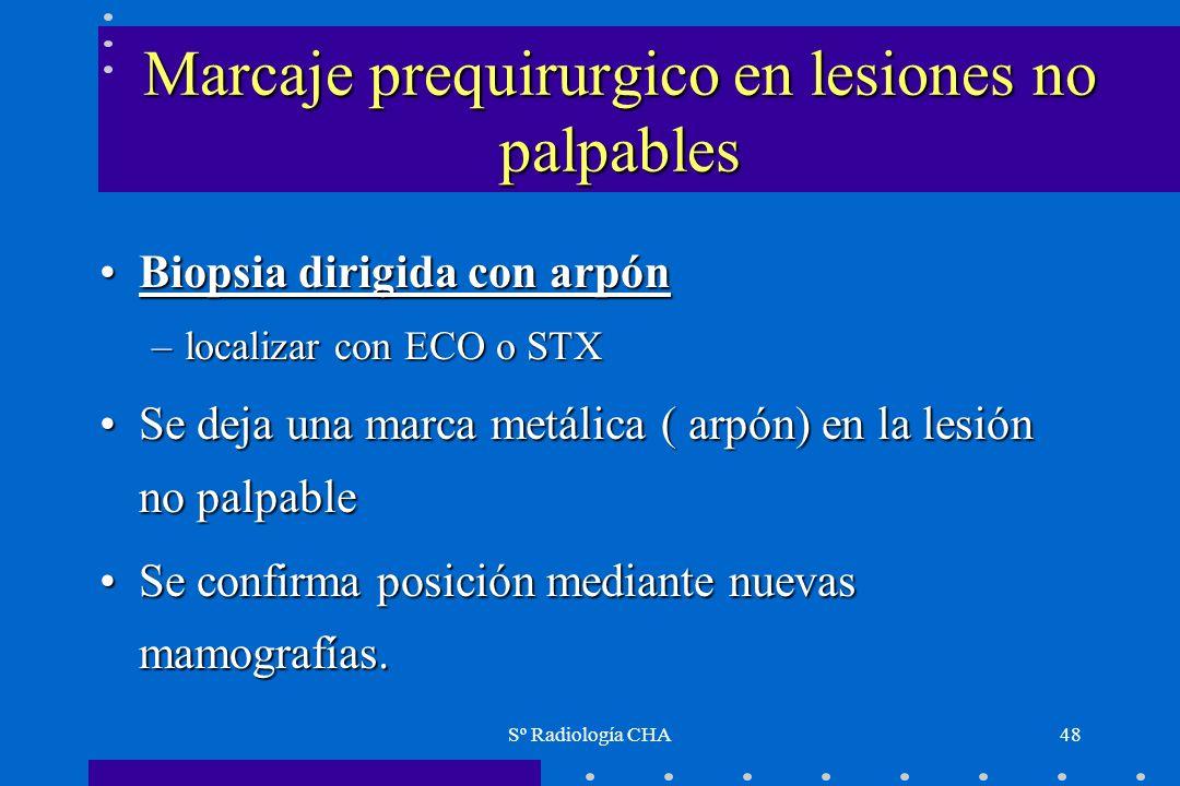 Sº Radiología CHA48 Marcaje prequirurgico en lesiones no palpables Biopsia dirigida con arpónBiopsia dirigida con arpón –localizar con ECO o STX Se de