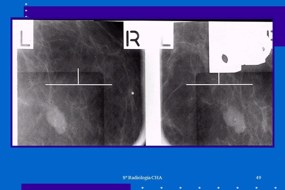 Sº Radiología CHA49