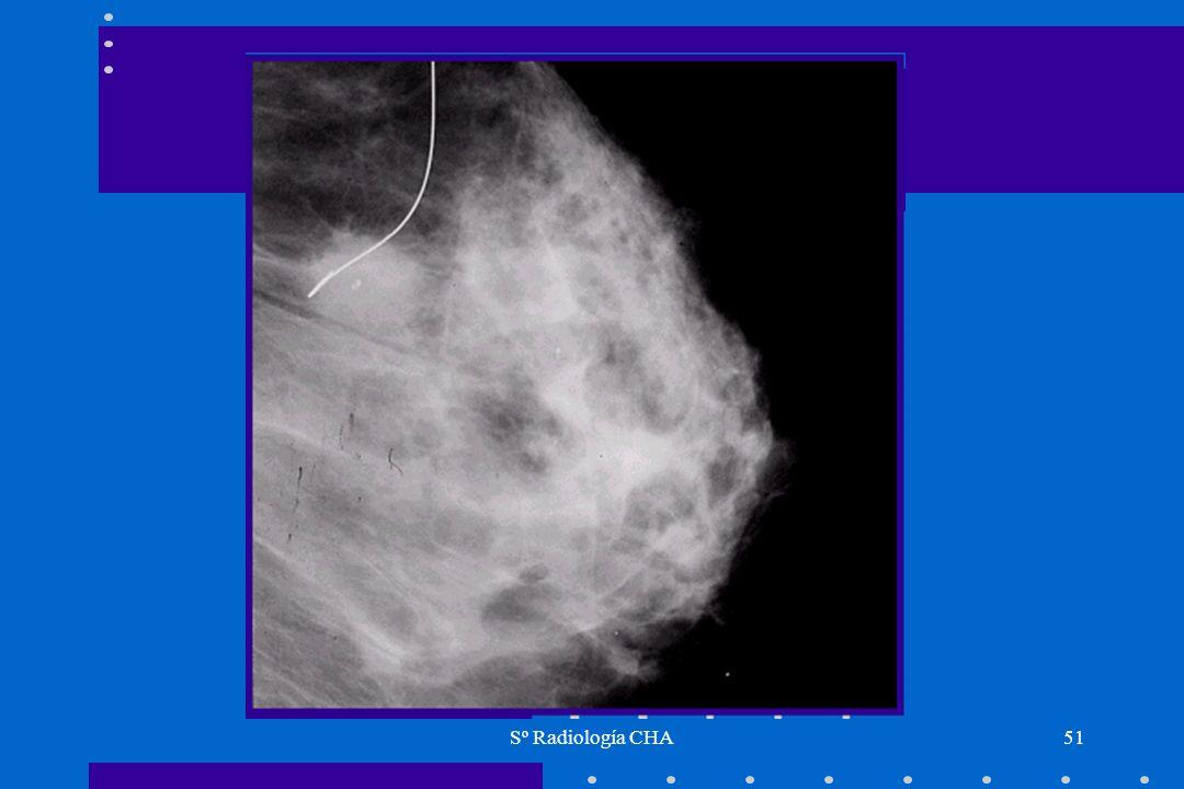 Sº Radiología CHA51