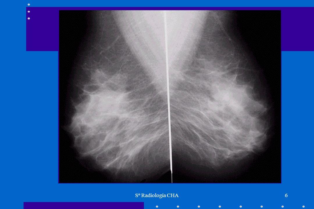 Sº Radiología CHA37 Ecografía de mama Limitaciones Incapaz para detectar microcalcificaciones, que son un signo muy importante de cáncer de mama precozIncapaz para detectar microcalcificaciones, que son un signo muy importante de cáncer de mama precoz Hasta un 50% de los cánceres no palpables se manifiestan por calcificaciones en MRXHasta un 50% de los cánceres no palpables se manifiestan por calcificaciones en MRX La ecografía, por tanto, no es la exploración indicada para el screening de mamaLa ecografía, por tanto, no es la exploración indicada para el screening de mama