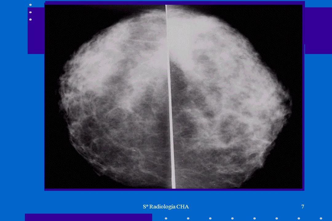 Sº Radiología CHA48 Marcaje prequirurgico en lesiones no palpables Biopsia dirigida con arpónBiopsia dirigida con arpón –localizar con ECO o STX Se deja una marca metálica ( arpón) en la lesión no palpableSe deja una marca metálica ( arpón) en la lesión no palpable Se confirma posición mediante nuevas mamografías.Se confirma posición mediante nuevas mamografías.
