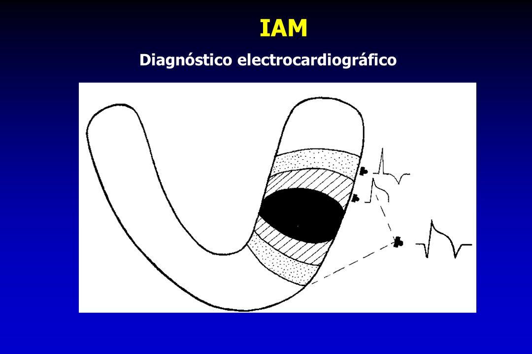 IAM Diagnóstico electrocardiográfico