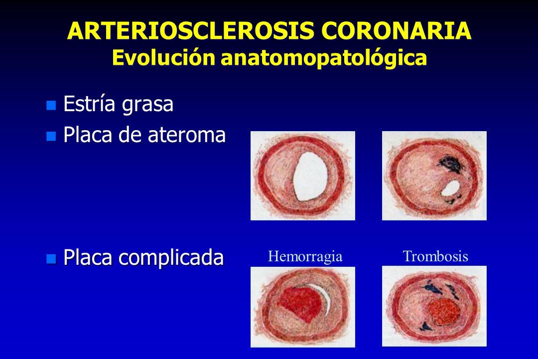 ARTERIOSCLEROSIS CORONARIA Evolución anatomopatológica n Estría grasa n Placa de ateroma n Placa complicada n Estría grasa n Placa de ateroma n Placa