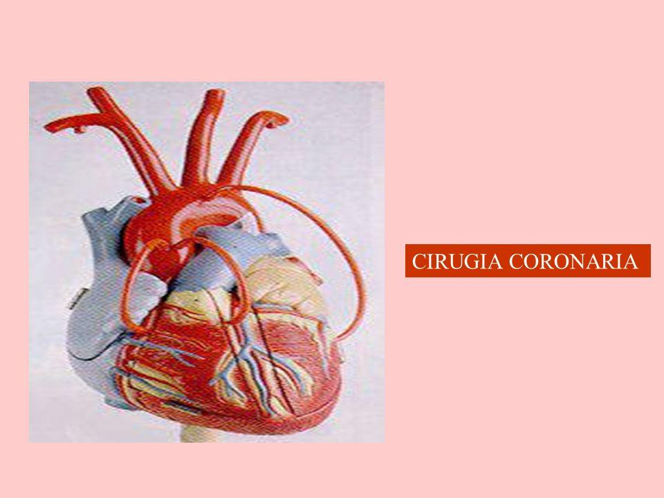 CIRUGIA CORONARIA