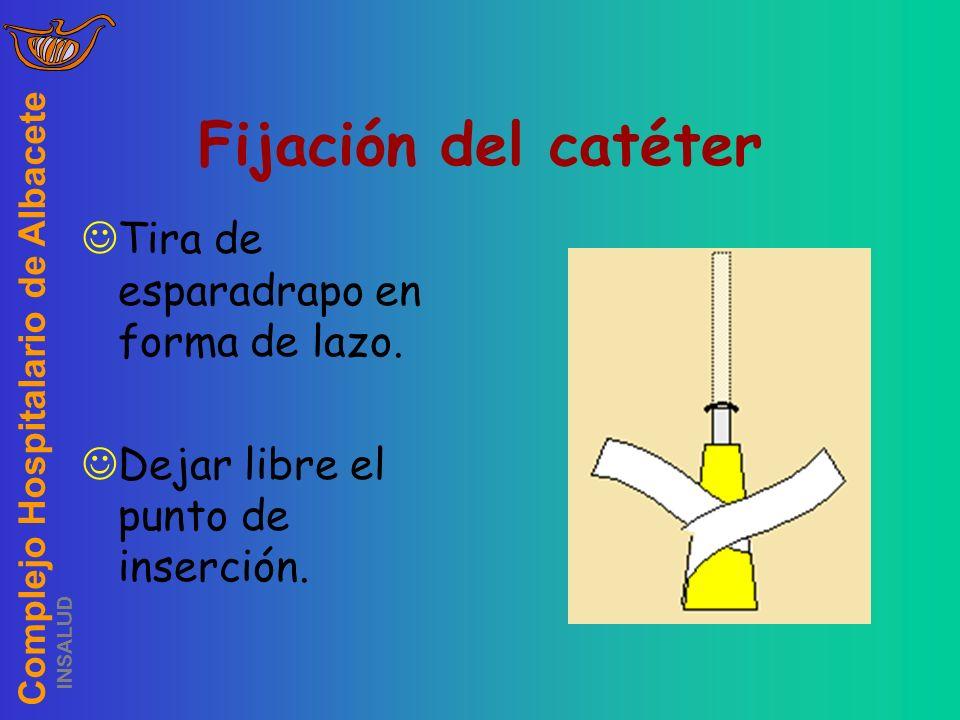 Complejo Hospitalario de Albacete INSALUD Fijación del catéter Tira de esparadrapo en forma de lazo. Dejar libre el punto de inserción.