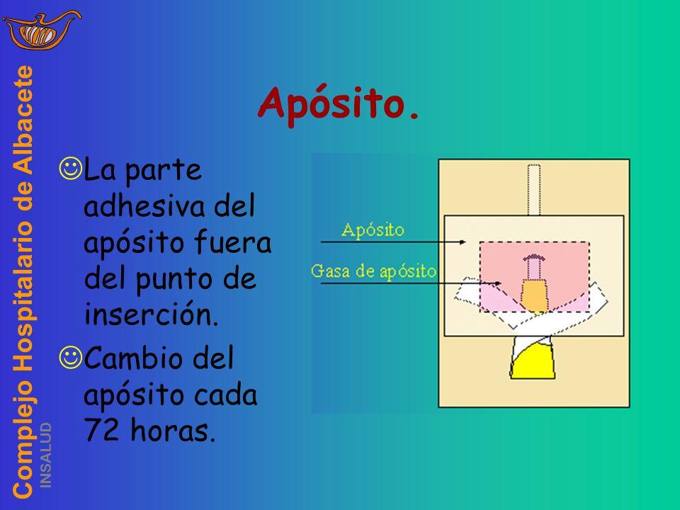 Complejo Hospitalario de Albacete INSALUD Apósito. La parte adhesiva del apósito fuera del punto de inserción. Cambio del apósito cada 72 horas.
