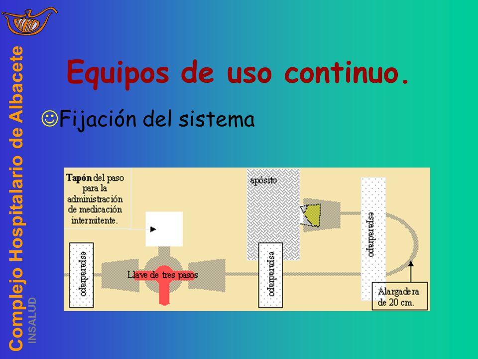 Complejo Hospitalario de Albacete INSALUD Equipos de uso continuo. Fijación del sistema