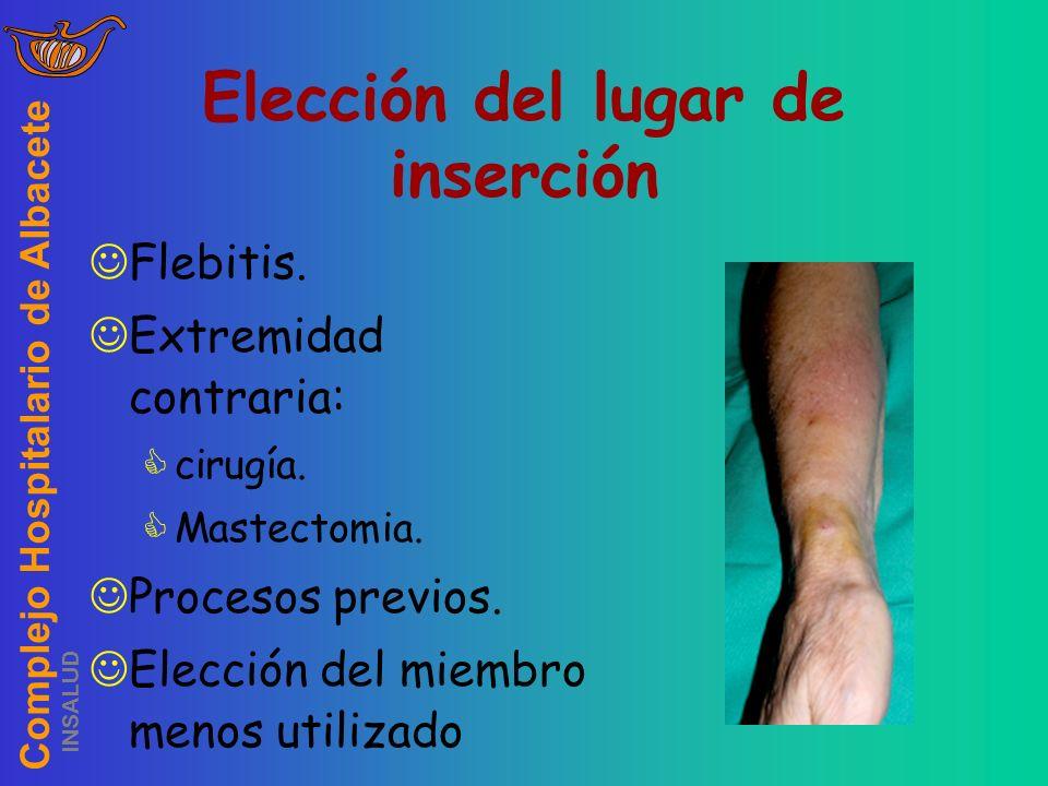 Complejo Hospitalario de Albacete INSALUD Flebitis. Extremidad contraria: cirugía. Mastectomia. Procesos previos. Elección del miembro menos utilizado