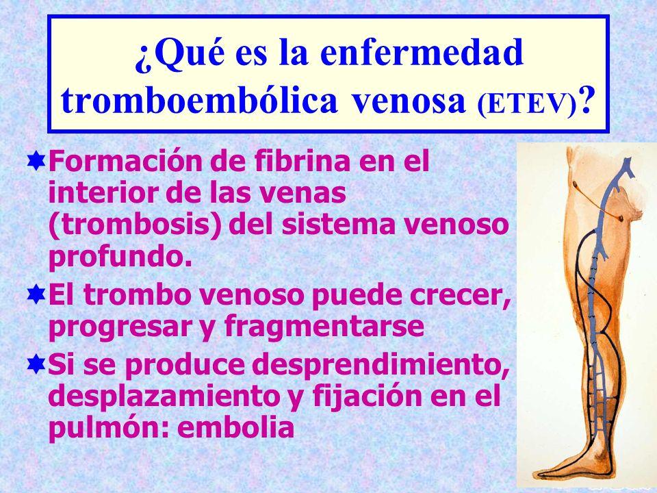 ¿Qué es la enfermedad tromboembólica venosa (ETEV) ? Formación de fibrina en el interior de las venas (trombosis) del sistema venoso profundo. El trom
