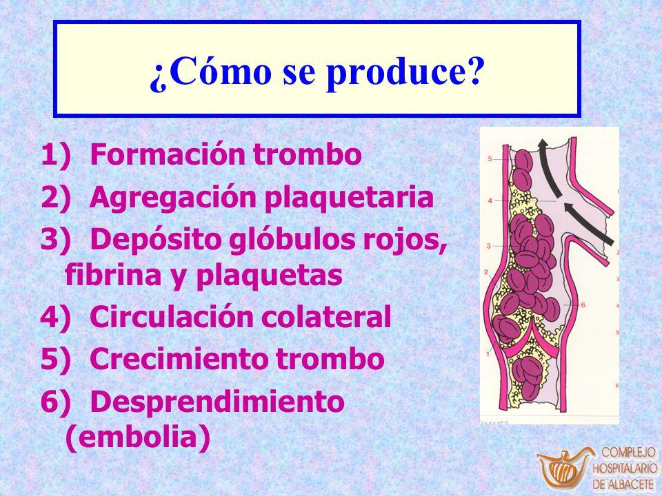 ¿Cómo se produce? 1) Formación trombo 2) Agregación plaquetaria 3) Depósito glóbulos rojos, fibrina y plaquetas 4) Circulación colateral 5) Crecimient