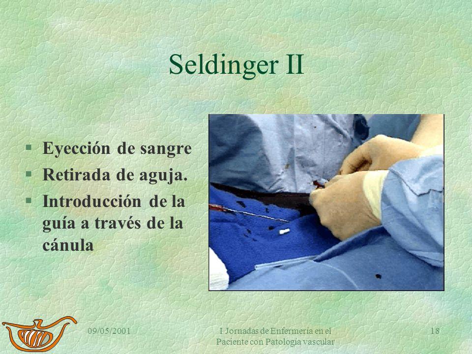 09/05/2001I Jornadas de Enfermería en el Paciente con Patología vascular 17 Seldinger I §Punción arterial §Anestesia local §Canalización