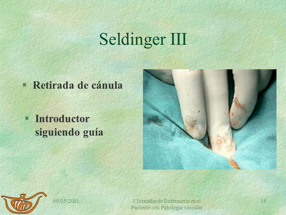 09/05/2001I Jornadas de Enfermería en el Paciente con Patología vascular 18 Seldinger II §Eyección de sangre §Retirada de aguja. §Introducción de la g