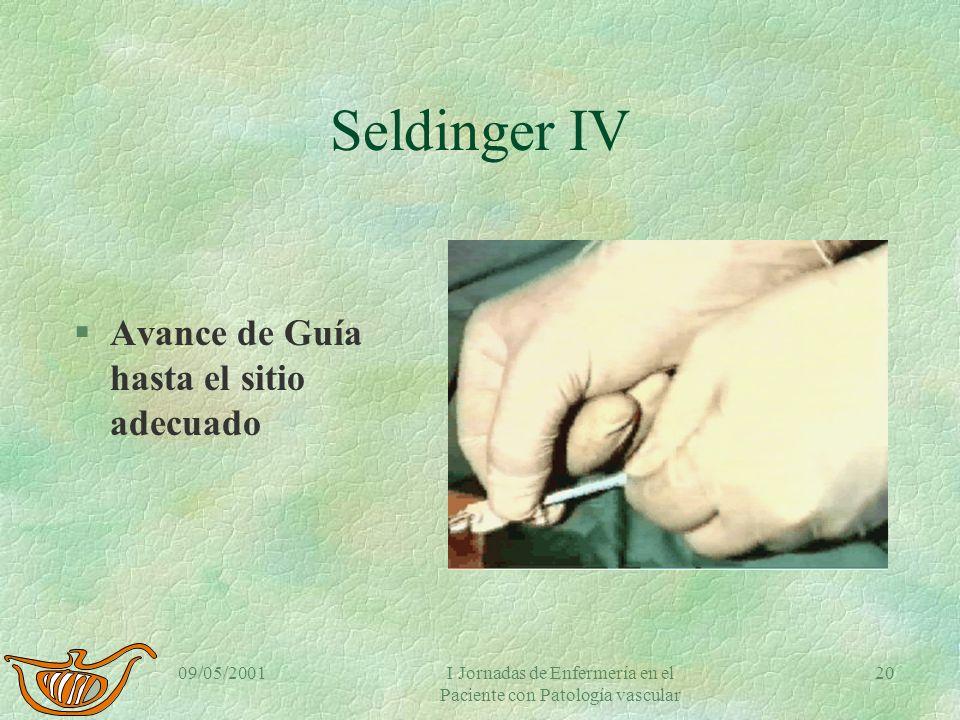 09/05/2001I Jornadas de Enfermería en el Paciente con Patología vascular 19 Seldinger III §Retirada de cánula §Introductor siguiendo guía