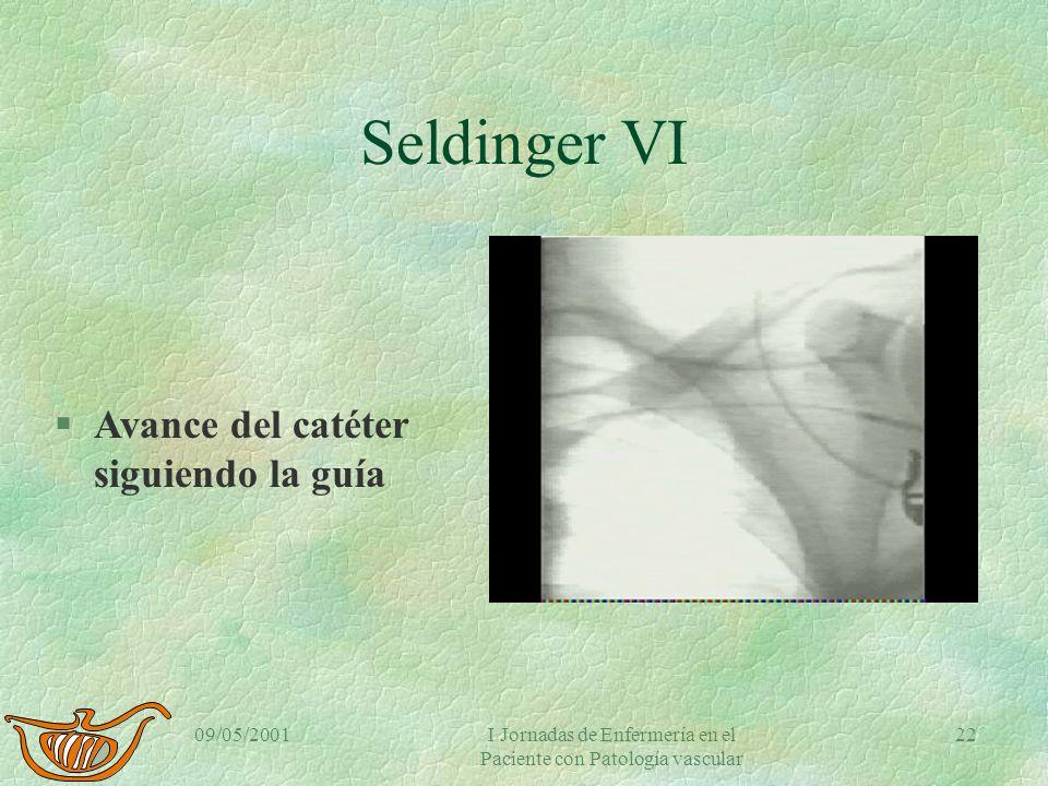 09/05/2001I Jornadas de Enfermería en el Paciente con Patología vascular 21 Seldinger V §Catéter siguiendo la guía